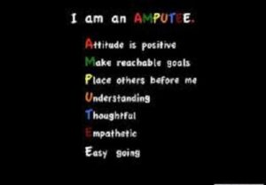 challenge for amputee